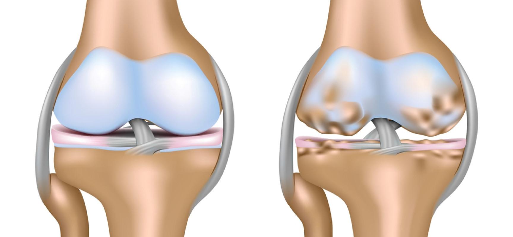 Физическая реабилитация при артритах