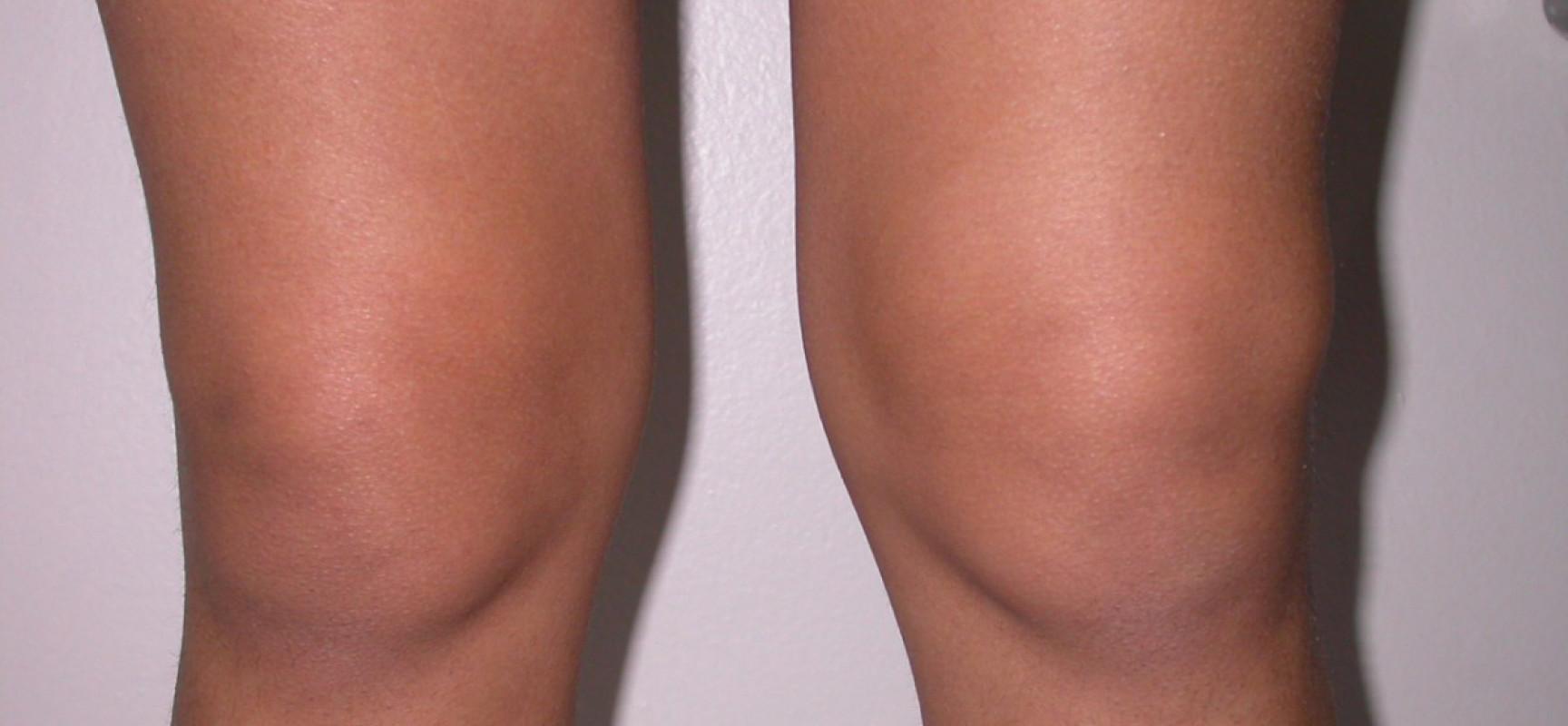 Реактивный выпот в коленном суставе гиалуроновая кислота для суставов инъекции