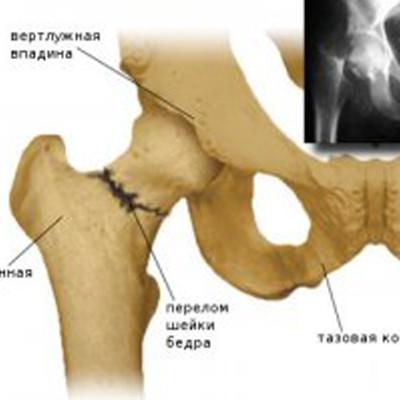 Бедренная кость при медиальных переломах