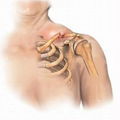 Лечение неосложненных переломов проксимального отдела плечевой кости у детей