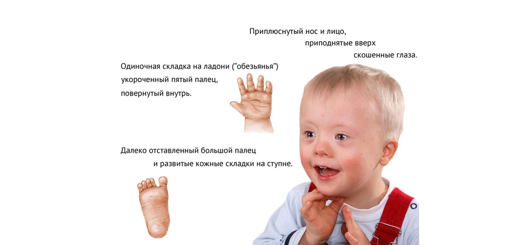 симптомы если есть глисты у человека