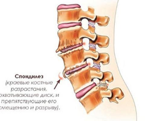 Комбинированный спондилез при травматических повреждениях позвоночника