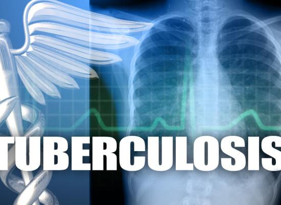 Туберкулинодиагностика при выявлении туберкулеза