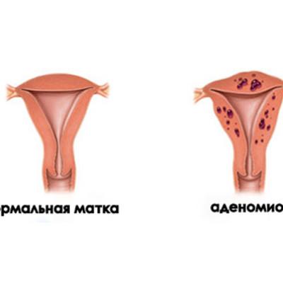 Эндометриоз тела матки