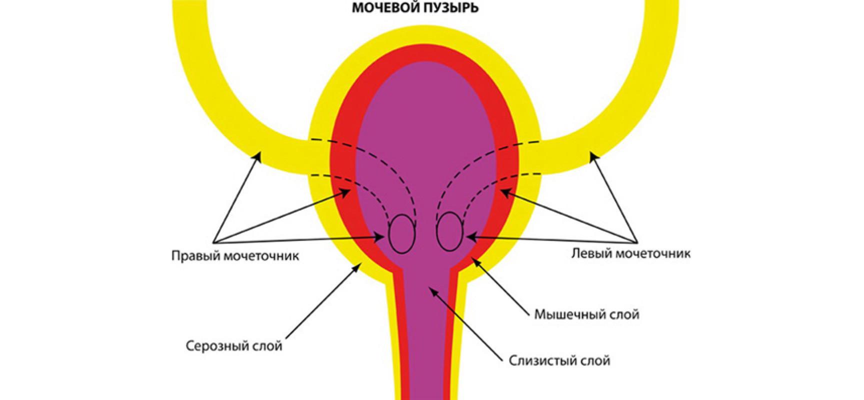 Воспаление мочевого пузыря симптомы 14 фотография