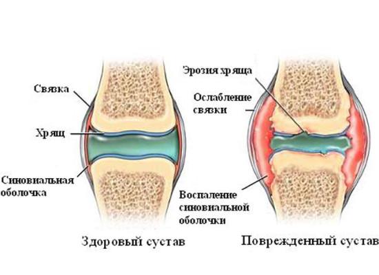 Сыворотка крови и синовиальная жидкости при артритах