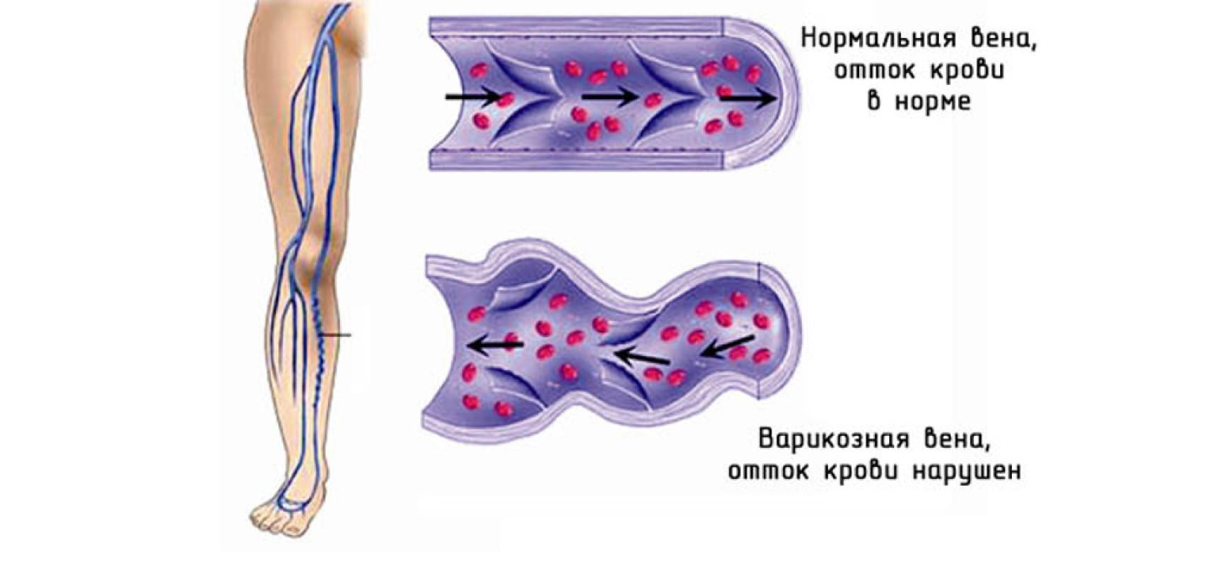 Трофическая язва голени