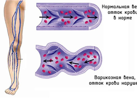 Трофические язвы нижних конечностей