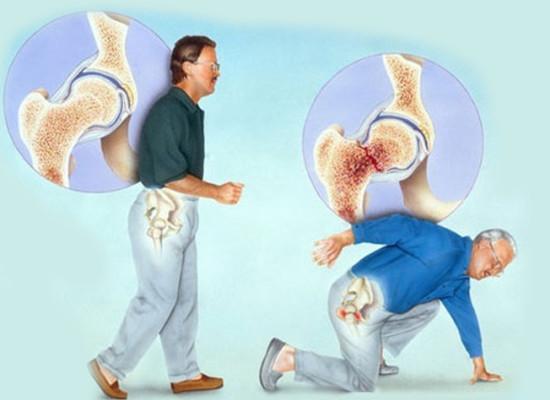 Ревматические заболевания как фактор риска остеопороза