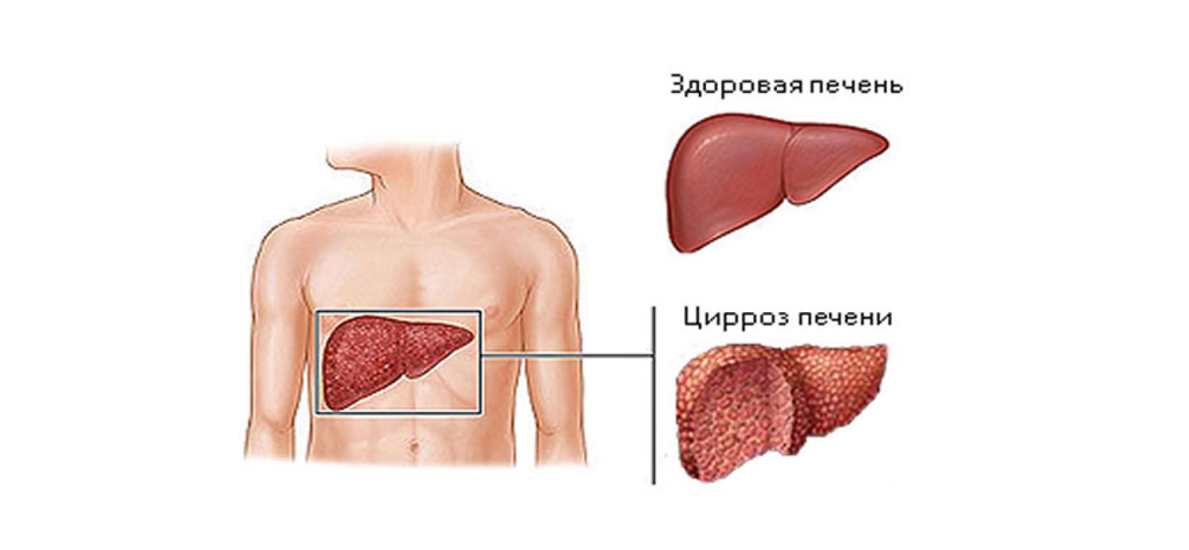 цирроз печени препараты для лечения
