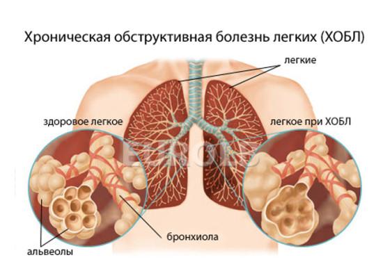 Хронические обструктивные болезни легких (ХОБЛ)