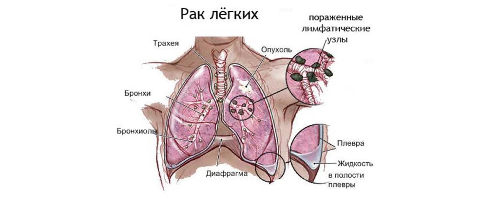 Класификация опухолей и лечение кинезитерапией