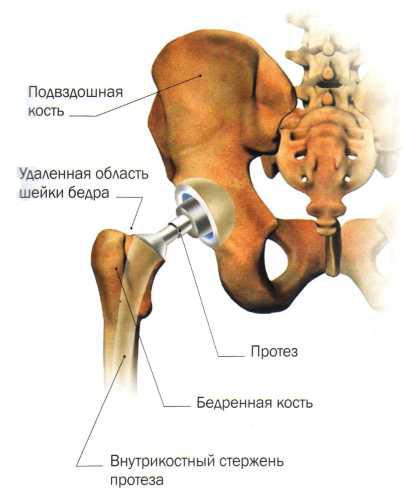 Бедренный сустав