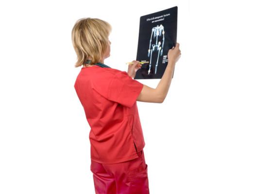 Остеопороз: диагностика, симптомы и лечение