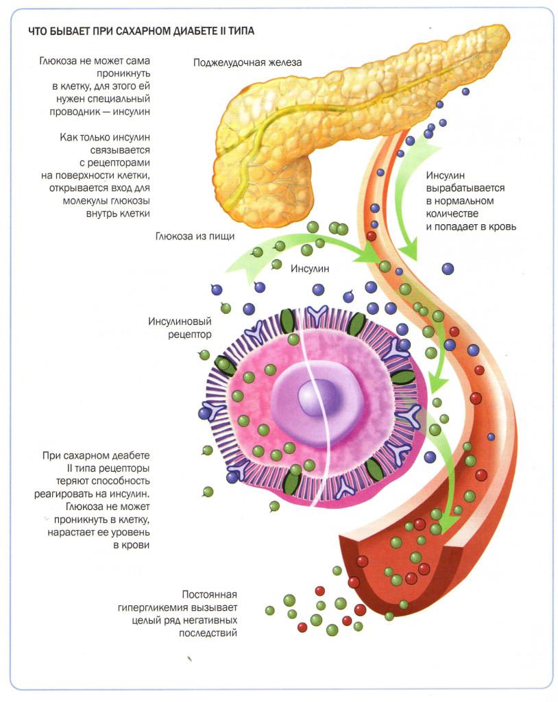 Схема инсулинозависимого сахарного диабета