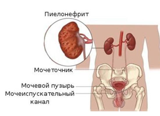 лекция лечение пиелонефрита