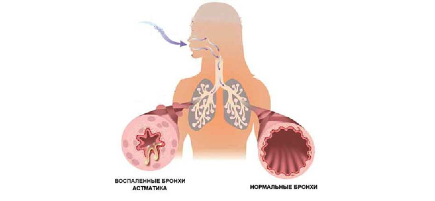 профболезни бронхиальная астма