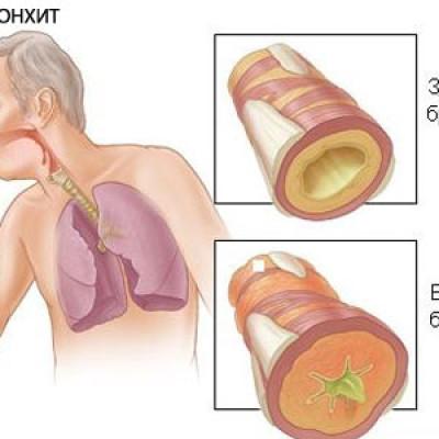 Заболевания нижних дыхательных путей. Питание