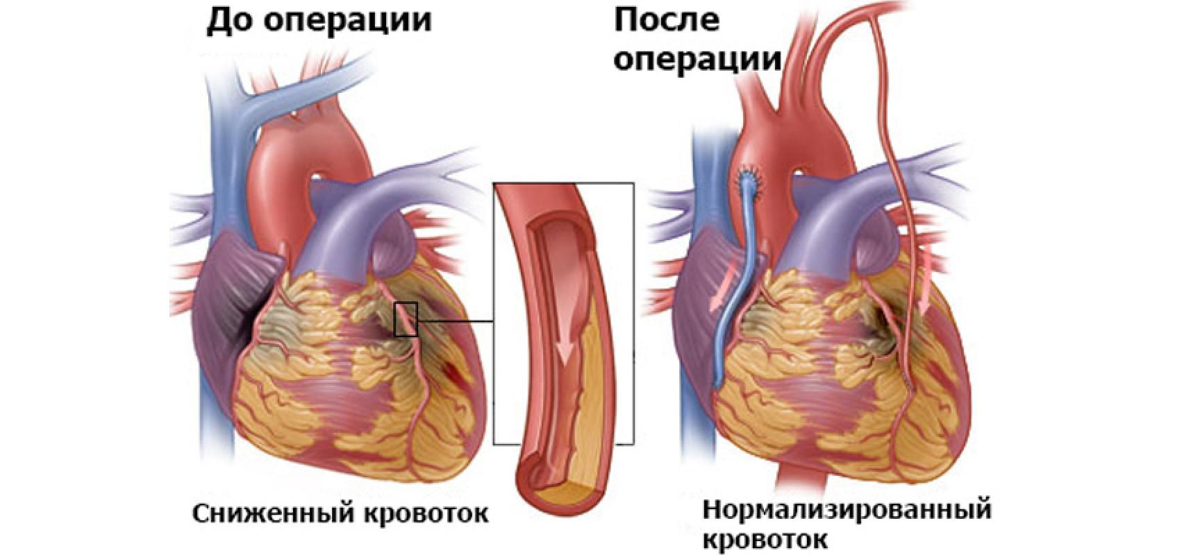 статины холестерина крови