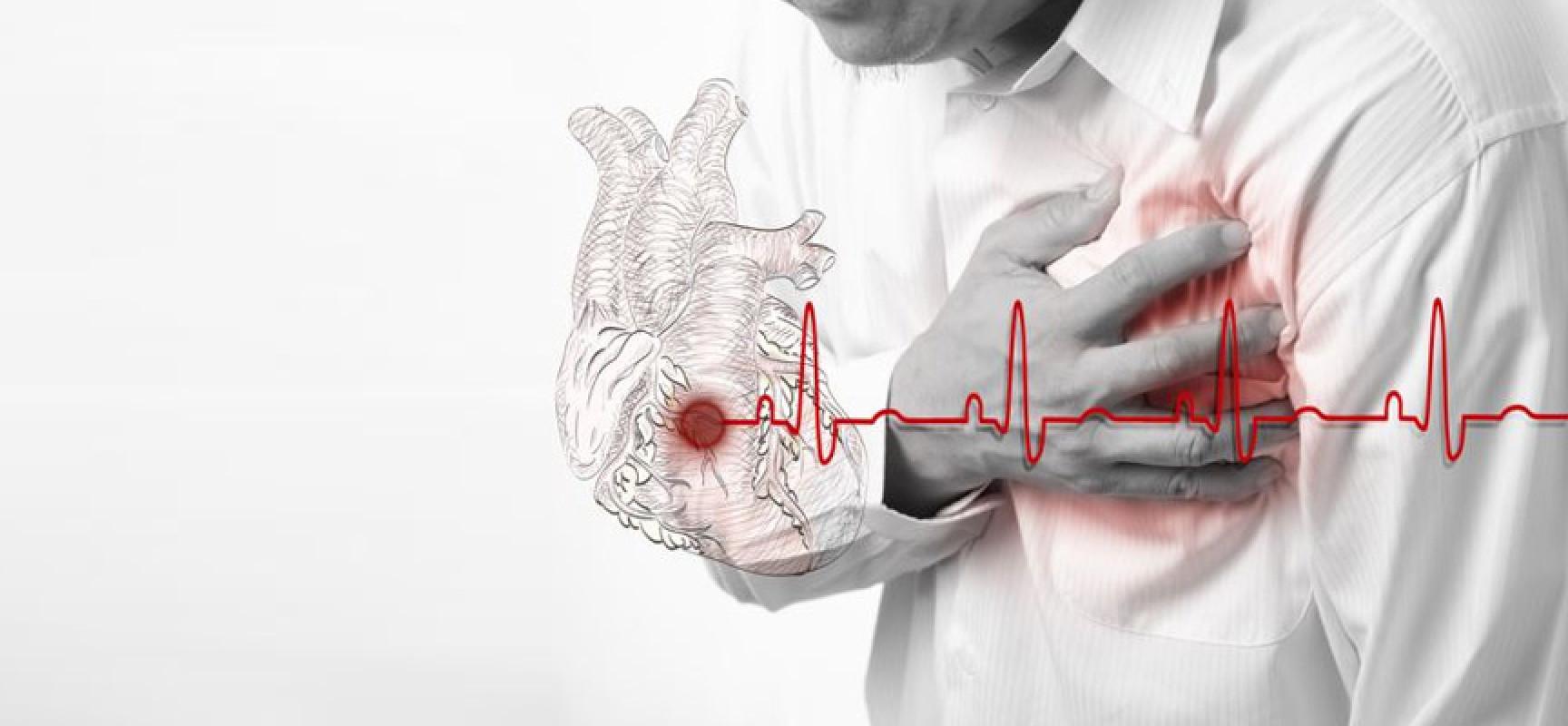 Инфаркт миокарда | Meddoc
