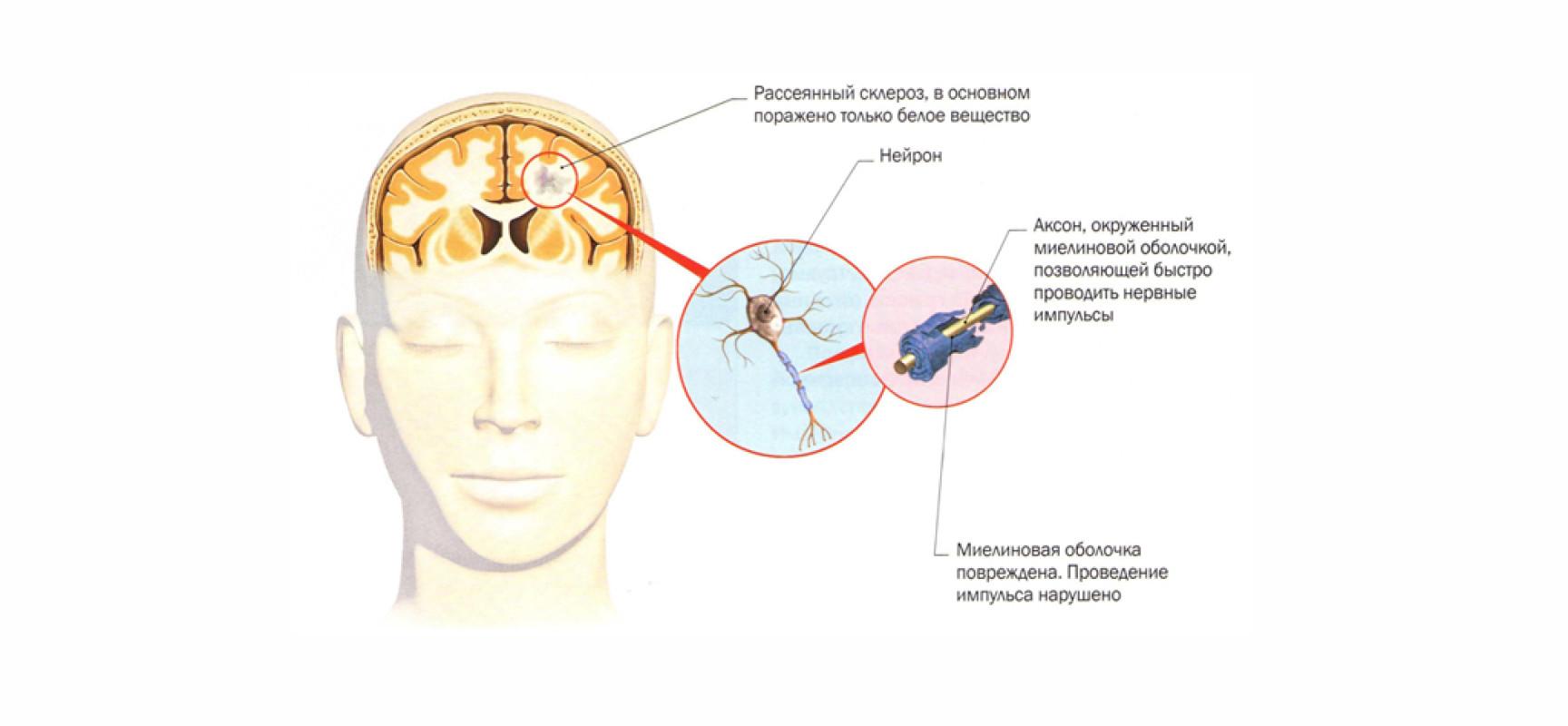 лечение рассеянного склероза в россии выдр коже