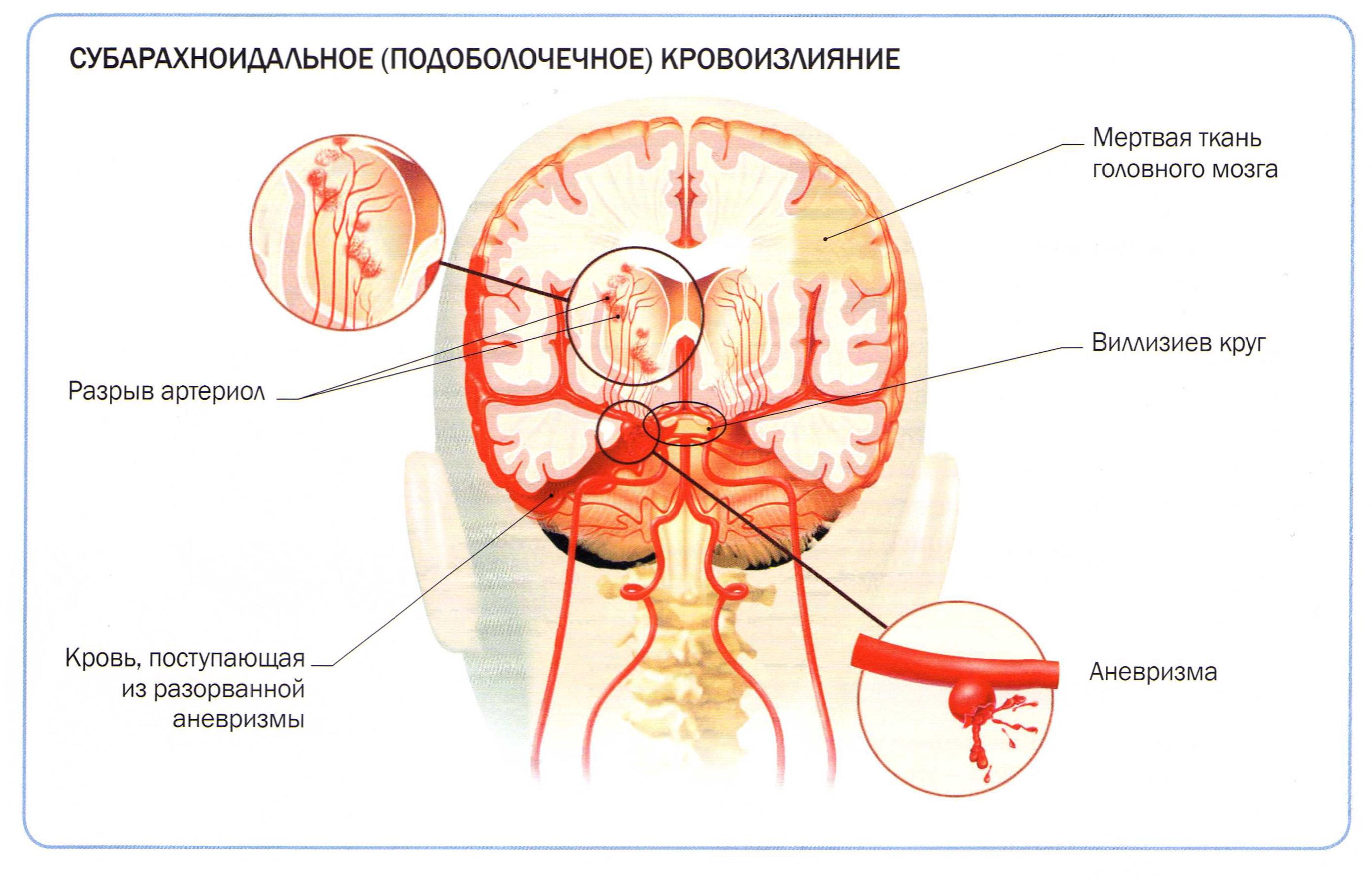Препараты при геморрое при беременности
