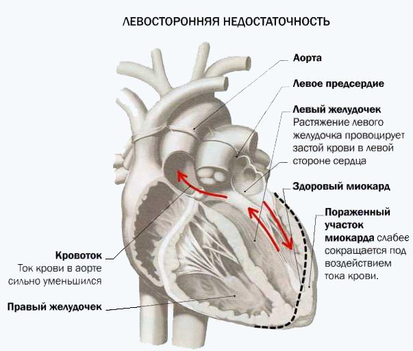 Левосторонняя сердечная недостаточность