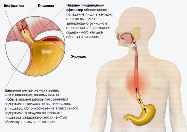 Изжога боли в кишечнике