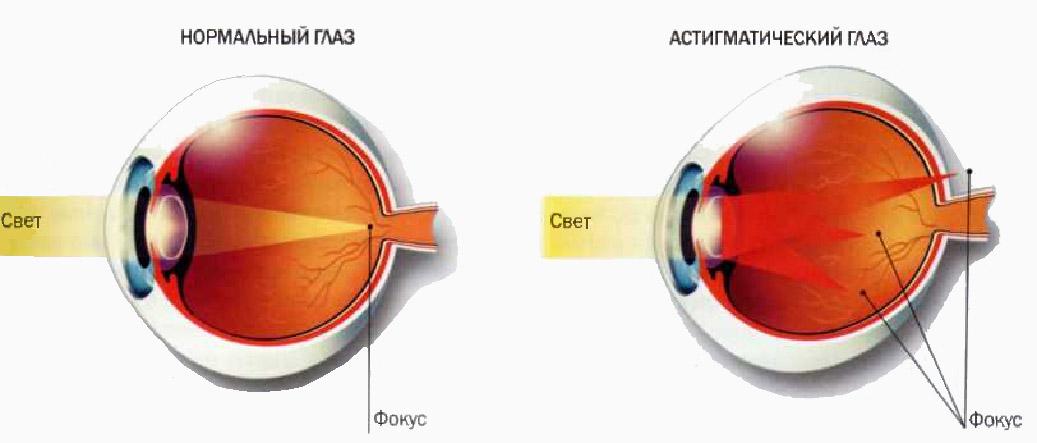 От чего зависит цена на линзы для очков для зрения