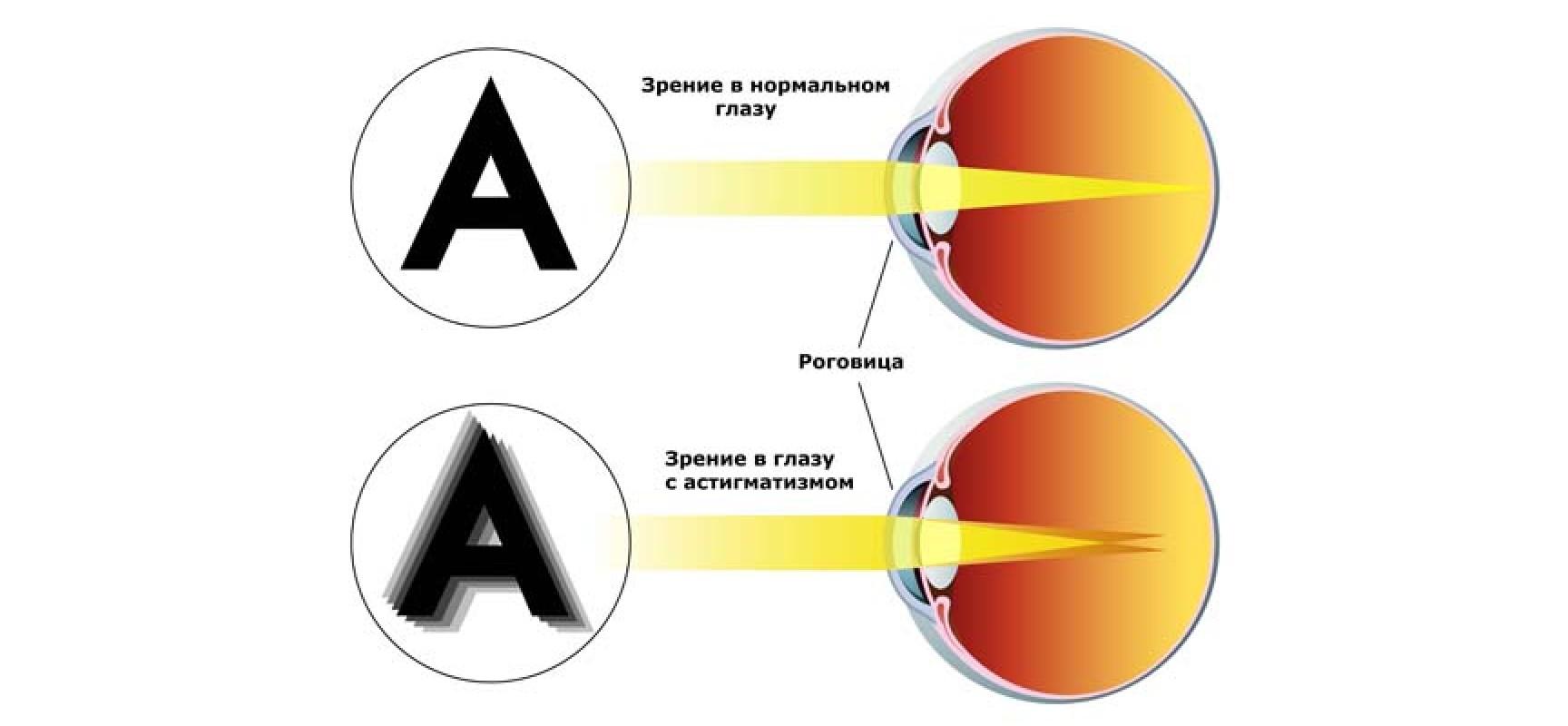 Какие лекарства улучшат зрение
