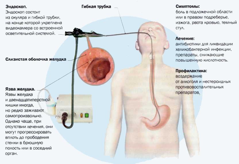 Болезни желудка и двенадцатиперстной кишки Meddoc