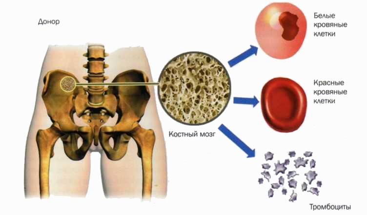 Пересадка костного мозга как происходит