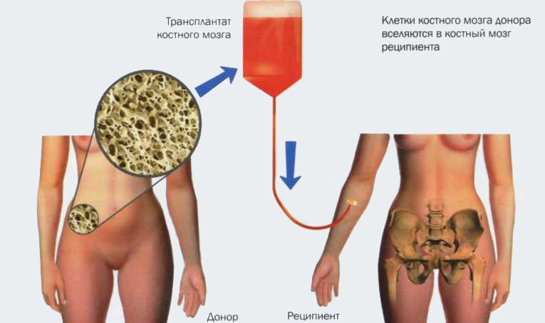 Трансплантация костного мозга (ТКМ)