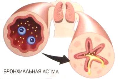 бронхиальная астма с полипами в носу