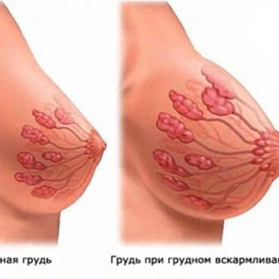 Мастит. Заболевание молочной железы