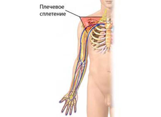 Болевой синдром при последствиях повреждения плечевого сплетения
