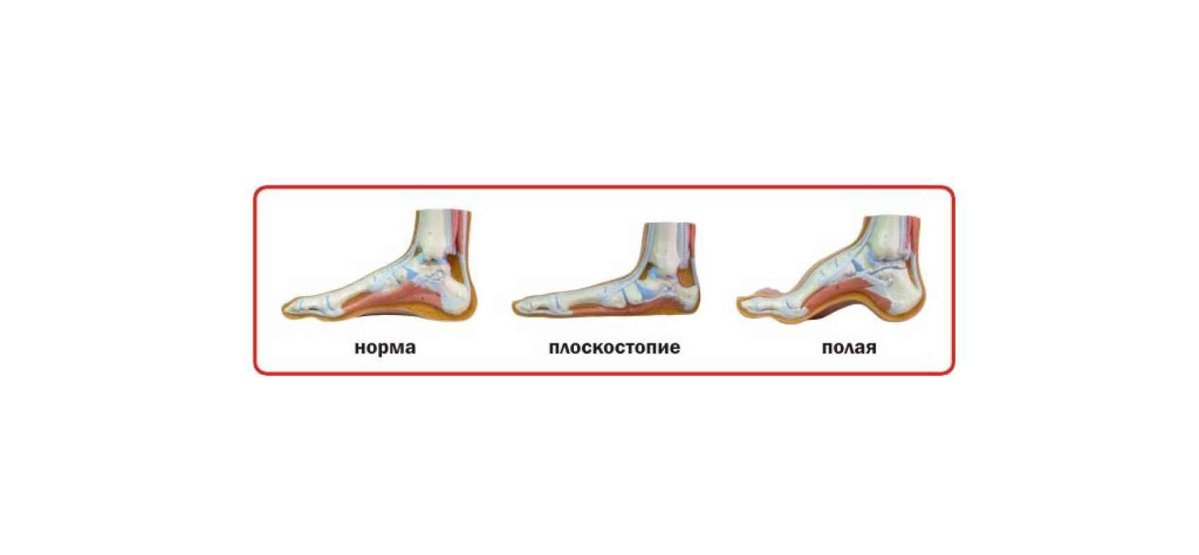 Педобарографическая диагностика плоскостопия у детей