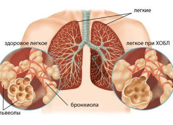 Состояние функции эндотелия и активность фагоцитоза при хронической обструктивной болезни легких и ишемической болезни сердца