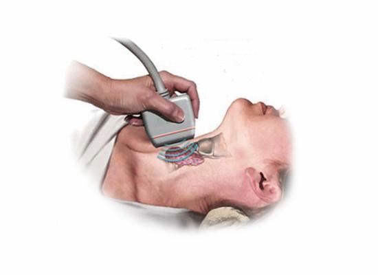 Патологическая анатомия в щитовидной железе