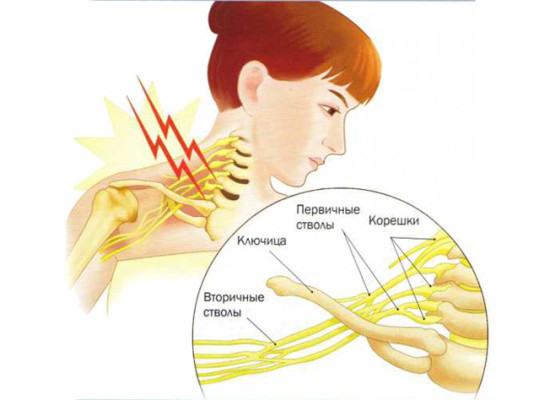 Компрессионно-ишемические поражения отдельных нервов