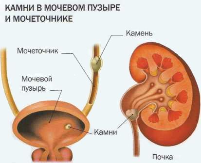 Мочекаменная болезнь (МКБ)