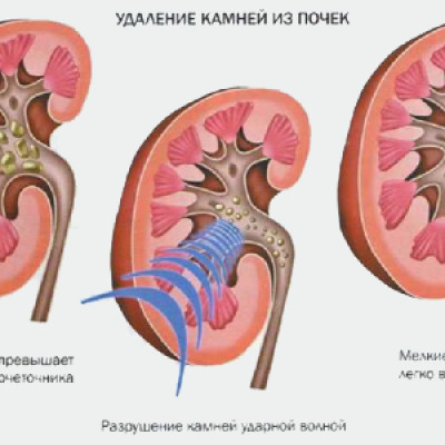 Лечение при мочекаменной болезни