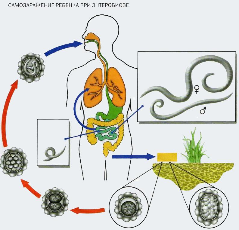 Самозаражение ребенка при энтеробиозе