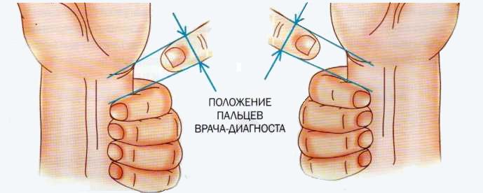 Положение пальцев врача