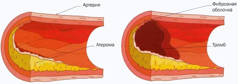 Атеросклероз. Ишемическая болезнь сердца