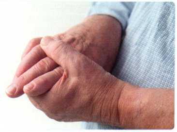 bolezn-artrit