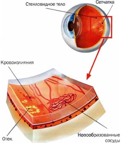 Внутриглазное кровоизлияние