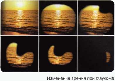 изменение зрения при глаукоме